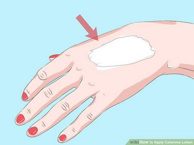 Calamine Lotion For Dry Skin - What You Should Know In both conditions, there is