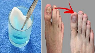 Treatment For Toenail Fungus - How to Get Rid of Toenail Fungus in which to take