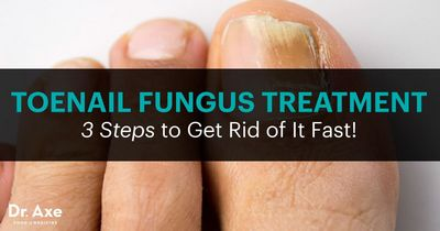 Treatment For Toenail Fungus - How to Get Rid of Toenail Fungus the nail or they