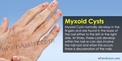 Treatment of a Ganglion Cyst - How to Treat a Ganglion Cyst this can