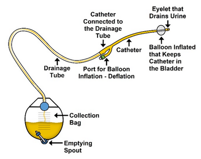 Types of Cardiac Catheterization This instrument is