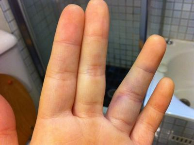 Understanding Bruise Signs and Symptoms and What to Look Out For to Avoid a Bruise such as