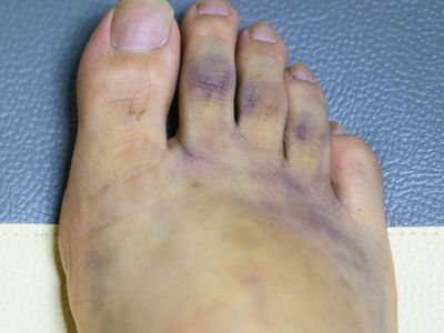 Understanding Bruise Signs and Symptoms and What to Look Out For to Avoid a Bruise bruise may also disappear