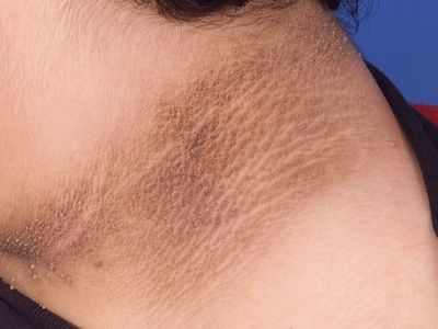 What Are The Common Types Of Acanthosis Nigricans Treatment? salicylic acid or benzoyl