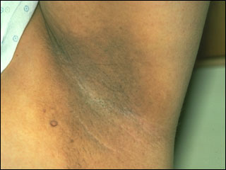 What Are The Common Types Of Acanthosis Nigricans Treatment? bite, your doctor