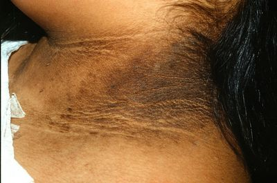 What Are The Common Types Of Acanthosis Nigricans Treatment? told that